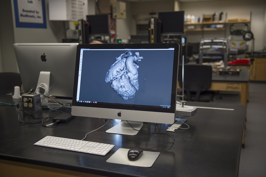 3-D printed heart model at UC Davis saves life of 19-month-old girl