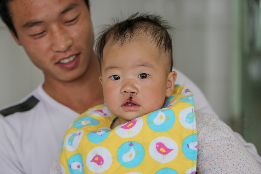 UC Davis surgeons travel to China to perform free cleft lip repairs on local orphans