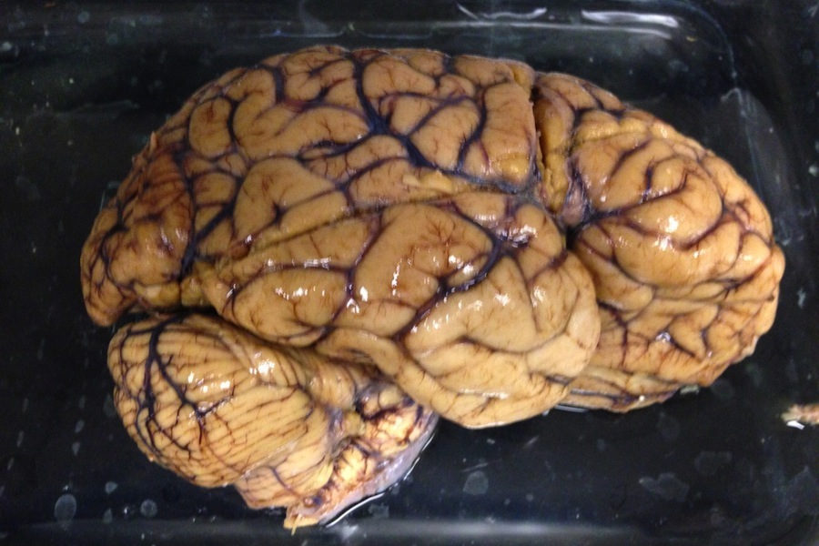Brain tissue shortage prompts donation program