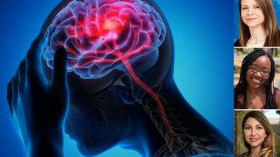 UC Davis students develop diagnostic method for stroke patients